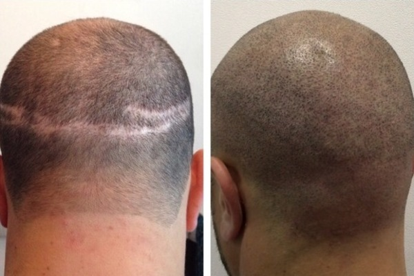 The HAIR TRANSPLANT SCAR - perfectmicrohair.com