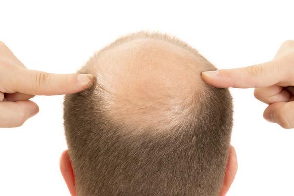 The bald spot